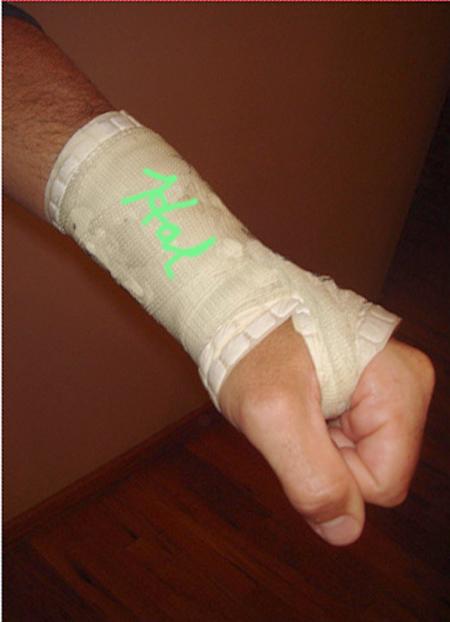 Stephen Colbert's wrist cast